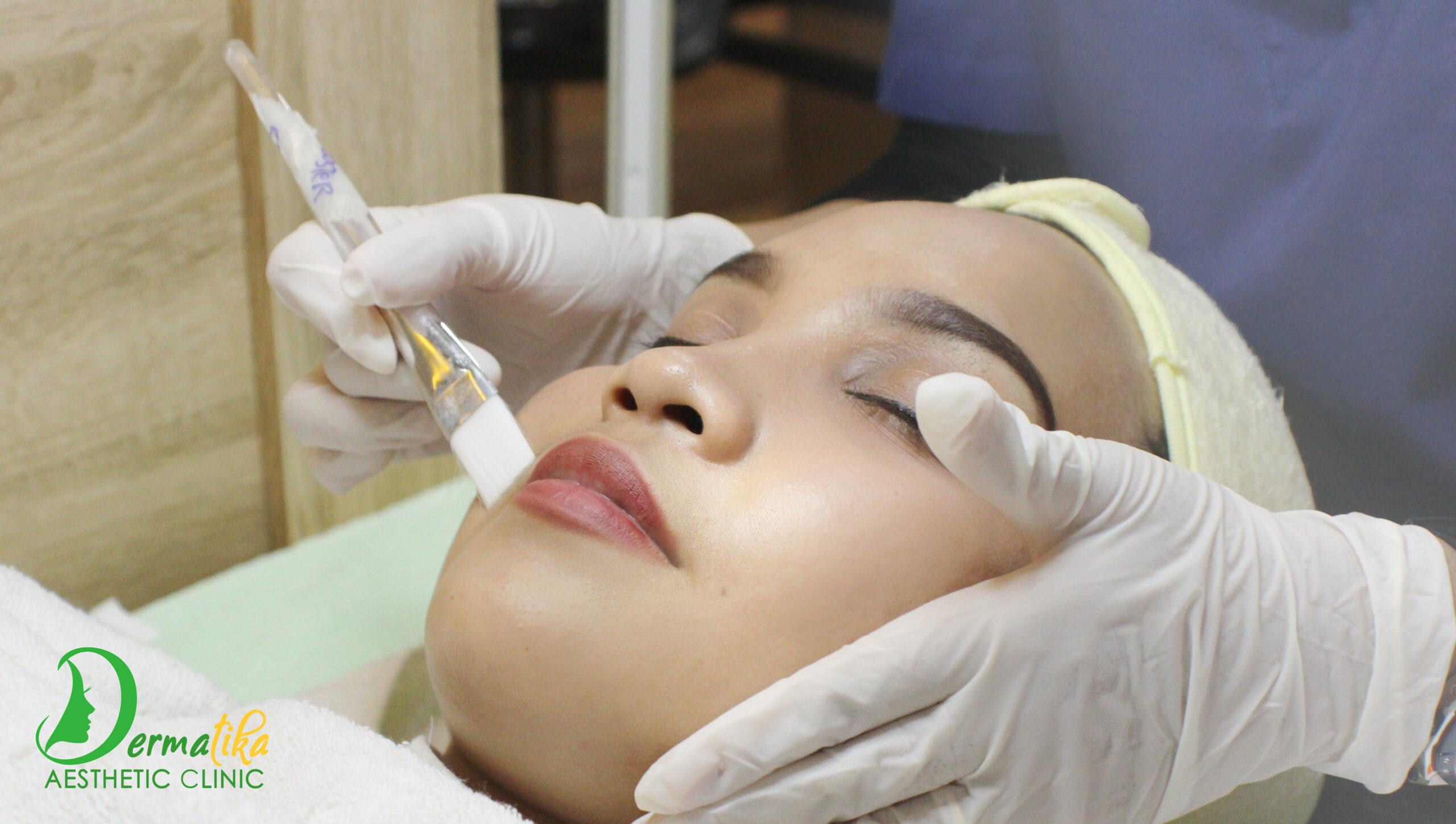 Peeling Acne